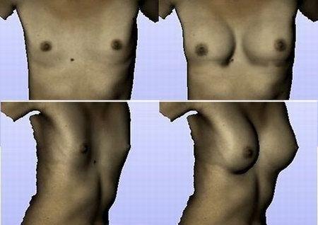 кристина-дерябина грудь после операции фото_kristi-1 смоделированные программой
