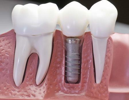 Имплантация жевательных зубов на верхней челюсти