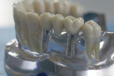 implantasiya_2