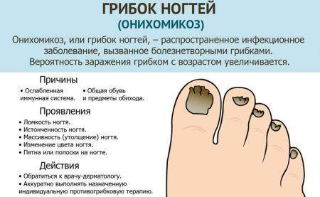 chem-obrabotat-gribok-na-nogah-v-domashnih-usloviyah-7795