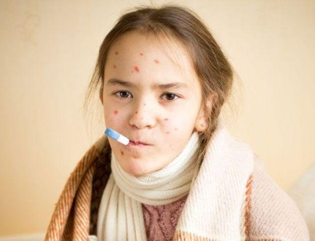Вспышка кори в Киеве: известный цирк обвинили в инфекционном заражении детей
