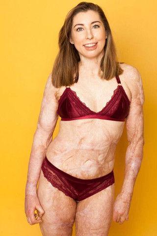 Обгоревшая на пожаре девушка не стесняется своих шрамов и показывает тело в бикини