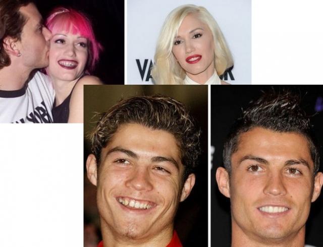 День стоматолога 2018: звездные улыбки ДО и ПОСЛЕ чудесного превращения