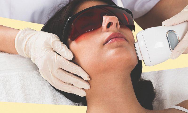 11 вещей, которые нужно знать о лазерной эпиляции