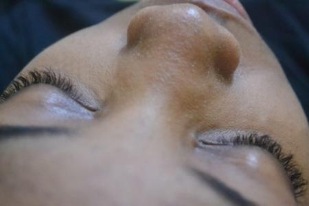 Как справиться с черными точками на лице?