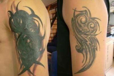 В каких случаях требуется коррекция татуировки?