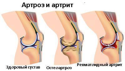 Артрозо-артрит