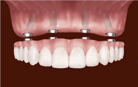 Имплантация зубов – что это?