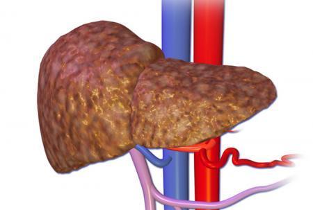 Абсцесс печени: симптомы, диагностика, лечение