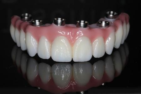 Протезирование зубов, этапы